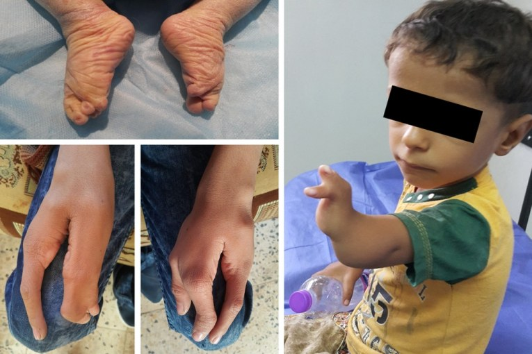 Iraqi Children Born Near US Military Base Show Elevated Rates of 'Serious Congenital Deformities: Study
